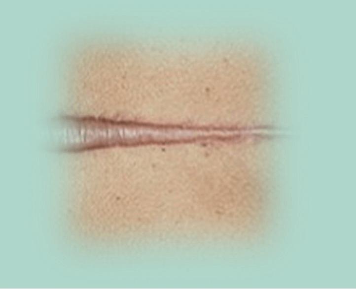 טיפ צלקת קלואידית בעור נטיה גנטית ויכולה להופיע בעקבות הזרקות וניתוחים כמו הזרקת שומן עצמי. תמונה של צלקת קלואידית.