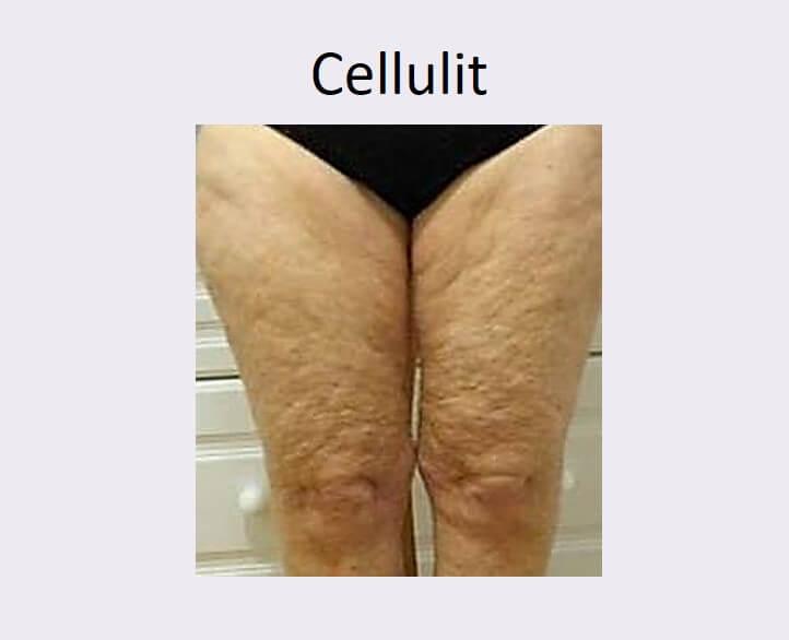 צלוליט - טיפול לצלוליט בגוף ברגליים, בירכיים ובישבן. תמונה של רגלי אישה עם צלוליט בולט.