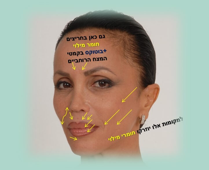 חומרי מילוי לקמטים - טיפ אזורי הזרקת חומרי מילוי לקמטים יציבים בפנים בעיקר בחלק התחתון של מחצית הפנים. תמונת פנים של חלי עם חיצים מסומנים לאזורי הזרקה.