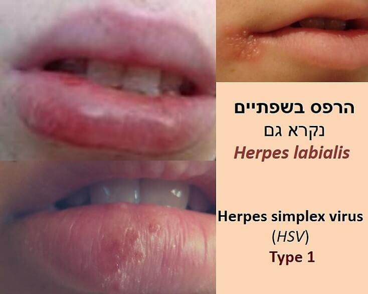 טיפ להרפס בשפתיים הרפס מטיפוס סוג 1. תמונת שפתיים עם שלפוחיות הרפס.Herpes labiais