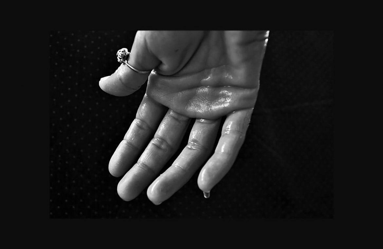 הזעת יתר בידיים טיפ 12א